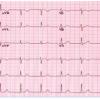 Fonctionnement électrique du cœur et ECG
